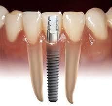 implantaatkroon.jpg