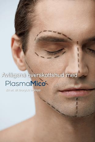 Perfect Beauty PlasmaMico