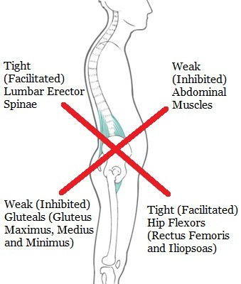 Diagram of Lower Crossed Syndrome