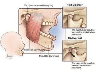 Tackling TMJ: What You Really Need
