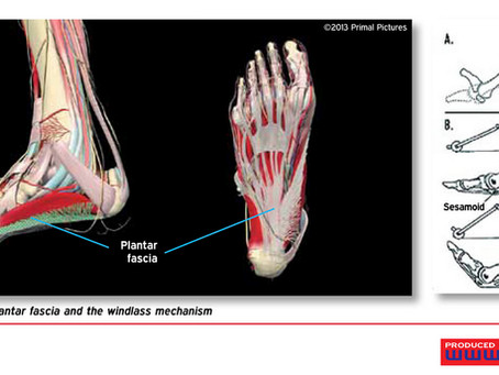 The best cost performance of fixing chronic plantar faschiitis