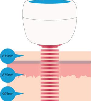 LLLT(低出力レーザー療法)のメカニズムはどのようなものか?