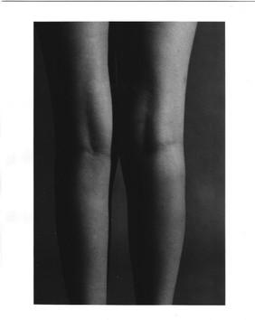 Body (Legs)