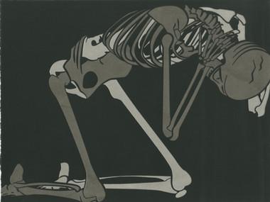 Crippled in Anxiety (Black)