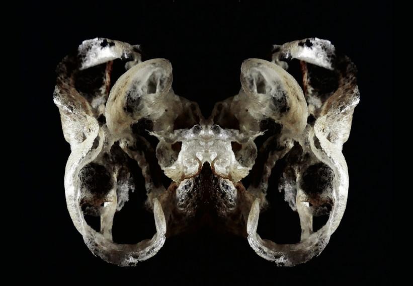 the pelvis.jpg