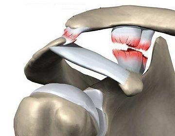Плечо.ру-разрыв акромиально ключичного сочленения плечевого сустава. Хирургия плеча, артроскопия, реабилитация