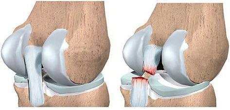 Разрыв задней крестообразной связки, Миленин о.н., миленин олег николаевич травматолог, колено ру, травма колена, операция на колене, артроскопия коленного сустава, коленный сустав, лечение коленного сустава, передняя крестообразная связка, задняя крестообразная связка, разрыв мениска, разрыв пкс, разрыв связки, привычный вывих надколенника, артроз коленного сустава, эндопротезирование, артроз, остеотомия, контрактура колена, реабилитация после артроскопии, операция на колене, уколы в колено, гиалуроновая кислота в колено