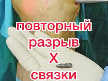 Повторный разрыв передней крестообразной связки (ПКС).