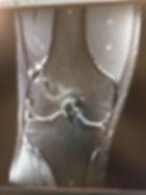 разрыв пкс, рзрыв предней крестообразной связки, передняя крестообраная связка, колено ру, артроскопия коленного сустава