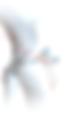 Повторный разрыв передней крестообразной связки