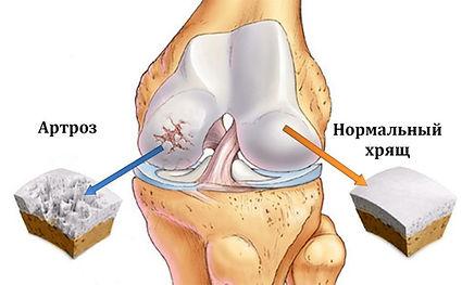 Артроз коленного сустава лечение. Артрит. Остеоартроз.