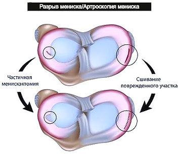 Разрыв мениска. Операция на мениске. Резекция и шов мениска.