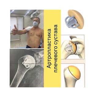 Артропластика плеча с госпитализацией на 1️⃣ сутки- это возможно❗