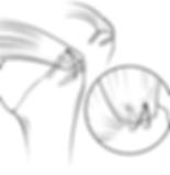 Разрыв вращательной манжеты плеча операция артроскопия
