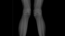 Было-стало. Сложный случай. Остеотомия коленного сустава.