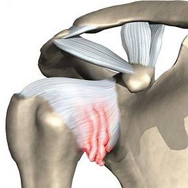 Плечо.ру-артроскопическая хирургия плечевого сустава