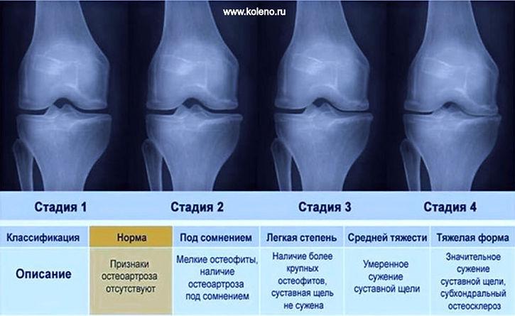 1стадия артроза, 2 стадия артроза, 3 стадия артроза, 4 стадия артроза. Артроз коленного сустава лечение.