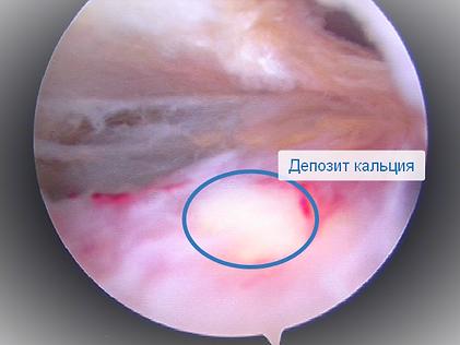 Кальцинирующий тендинит-операция.