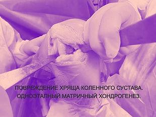Повреждение хряща коленного сустава. Операция на колене-хондропластика.