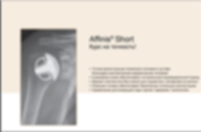 Миленин.ру- эндопротезирование плечевого сустава