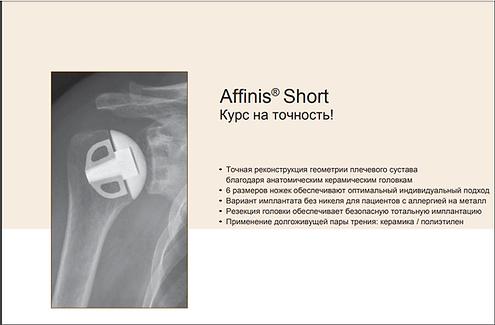 Плечо.ру- эндопротезирование плечевого сустава