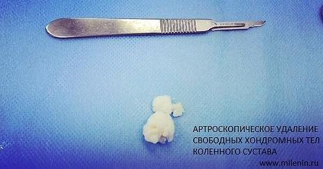 Артроскопическое удаление хондромных тел коленного сустава, колено ру, миленин ру, хондромное тело