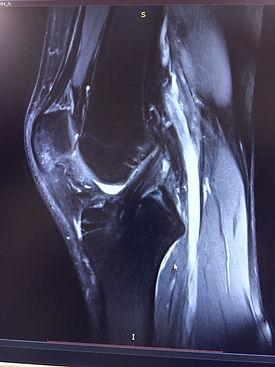 Пластика крестообразной связки колена