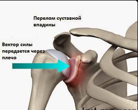 Внутрисуставной перелом плечевого сустава-операция