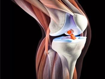 Не оперировать переднюю крестообразную связку, а только закачать мышцы. Это возможно?