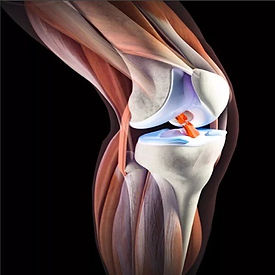 Повторный разрыв передней крестообразной связки колена