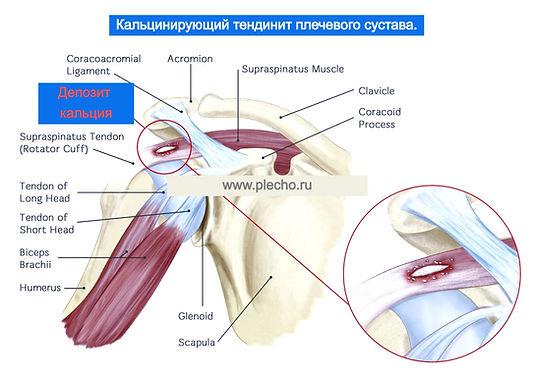 Кальцинирующий тендинит плечевого сустава-операция.