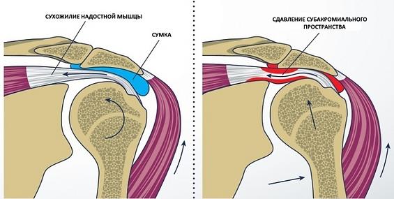 Артроскопия плечевого сустава Миленин Олег Николаевич