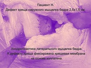 Повреждение хряща коленного сустава. Операция на хряще коленного сустава. Хондропластика.