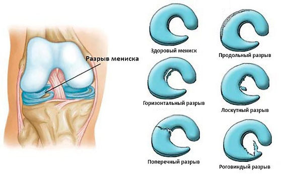 Разрыв мениска операция, Миленин о.н., миленин олег николаевич травматолог, колено ру, травма колена, операция на колене, артроскопия коленного сустава, коленный сустав, лечение коленного сустава, передняя крестообразная связка, задняя крестообразная связка, разрыв мениска, разрыв пкс, разрыв связки, привычный вывих надколенника, артроз коленного сустава, эндопротезирование, артроз, остеотомия, контрактура колена, реабилитация после артроскопии, операция на колене, уколы в колено, гиалуроновая кислота в колено