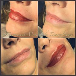 Smukke læber m/3D effekt