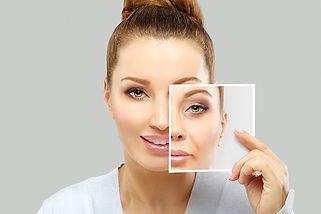 botoxfillers-thumb.jpg