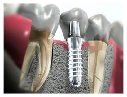 implante tornillo clínica dental sant boi