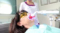 Tratamiento dientes blancos