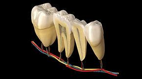 endodoncia clínica dental baix llobregat
