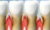 periodoncia clínica dental baix llobregat