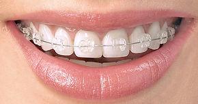 ortodoncia clinica dental baix llobregat