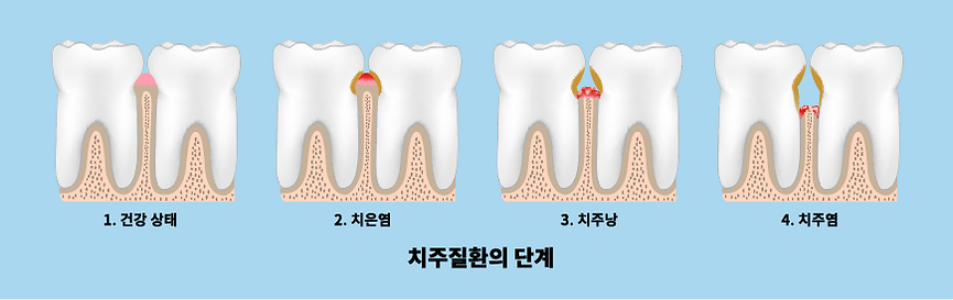 periodontitis.png
