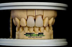 Elite Dental Studio Exocad Design
