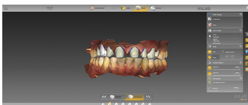 Elite Digital Dentistry Options