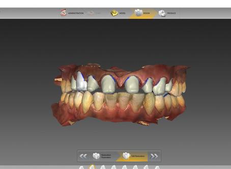 What is Digital Dentistry ?