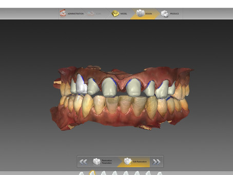 What is Digital Dentistry ?