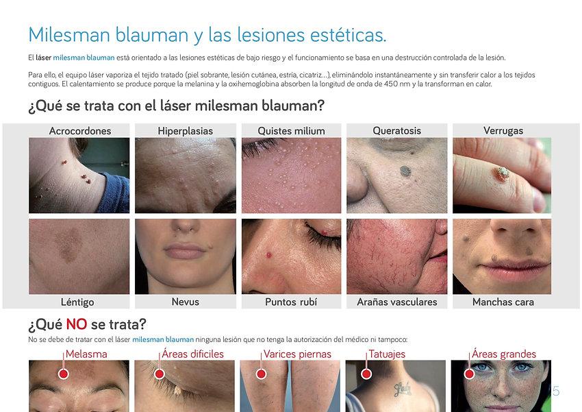 Láser azul Milesman Blauman eliminación imperfecciones de la piel