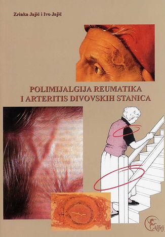 Polimijalgija reumatika.jpg