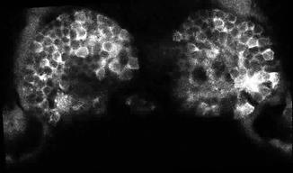 2018- calcium imaging in the habenula.ti