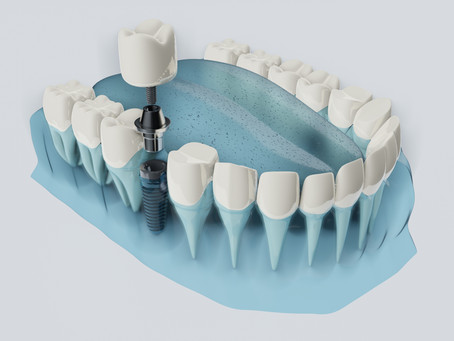 What exactly is a periodontist anyway?